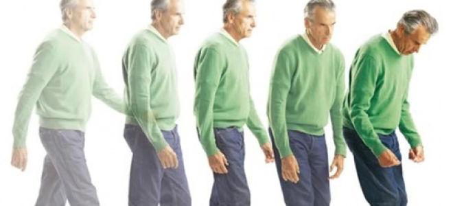 Описание стадий болезни Паркинсона по Хен-Яру
