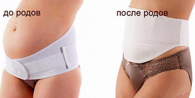 Как правильно одеть и носить бандаж после родов?