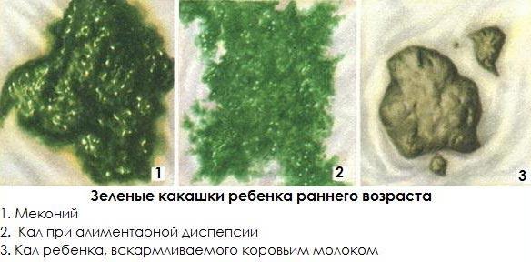 Зелёный понос у грудничка причины