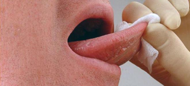 Лечение и прогноз бульбарной дизартрии