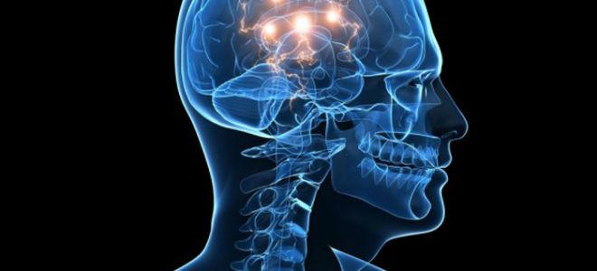 Последствия и осложнения после инсульта