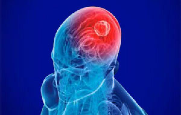 Компьютерная томография мозга: все за и против