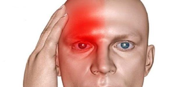В чем причины болей с правой стороны головы?