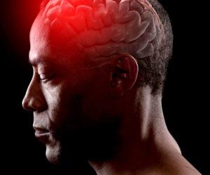 Отек мозга при обширном инсульте