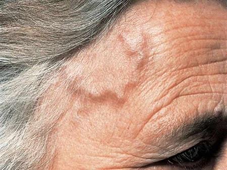 Причины боли в висках и глазах