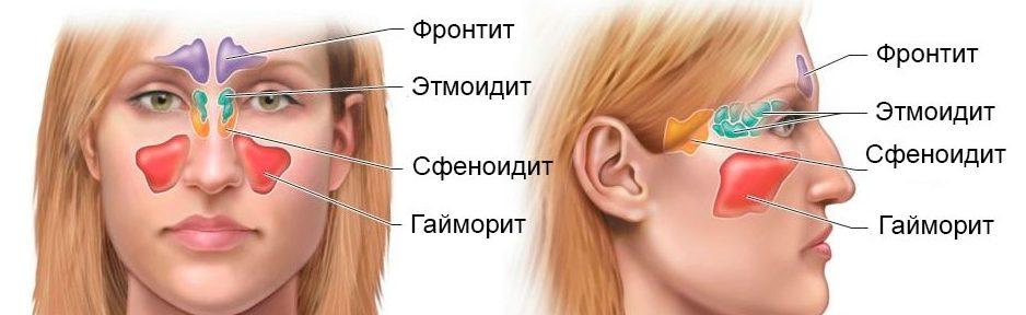 Причины головной боли в области глаз и лба