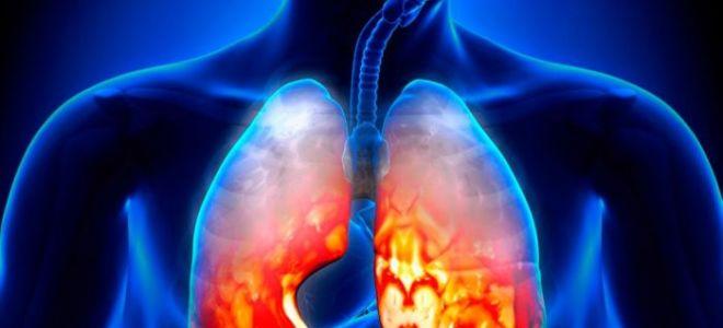Как защитить себя от застойной пневмонии после инсульта?