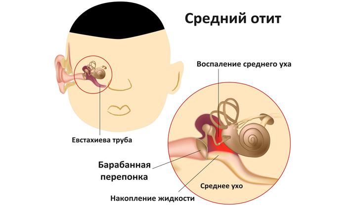 Причины и методы лечения невралгии ушного узла