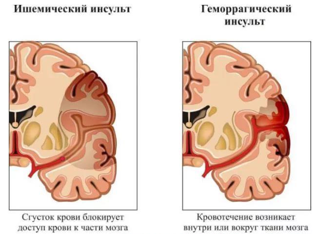 Ишемический инсульт левой стороны мозга