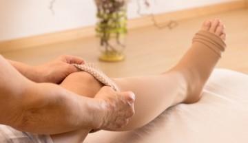 Народные средства от варикоза: лечение в домашних условиях