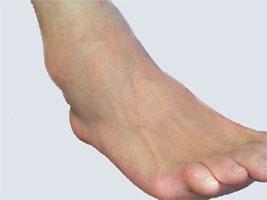 Как лечить отек ноги в щиколотке: народные и традиционные методы борьбы с проблемой