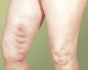 Тромбофлебит нижних конечностей: симптомы, причины возникновения, методы лечения