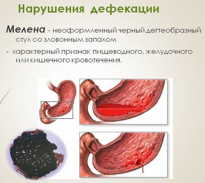 мелена язва желудка