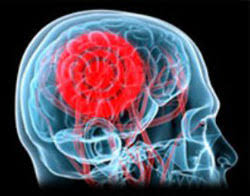 Причины сонливости с головной болью