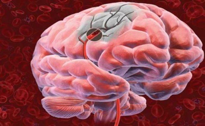 Некротический участок мозга
