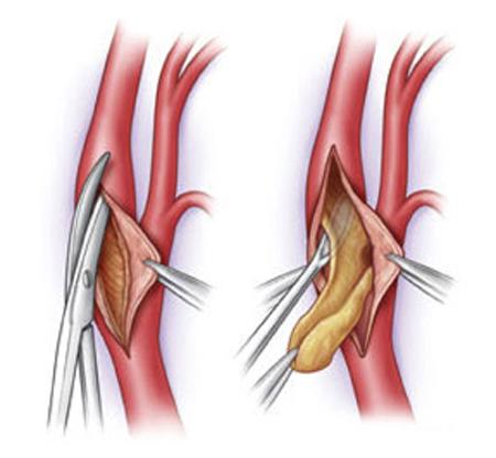 Проведение тромбэктомии