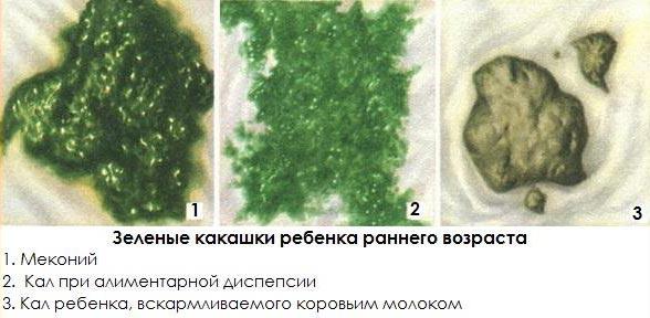 понос зеленого цвета