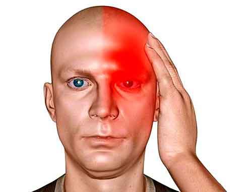 Глаукома и боль в голове