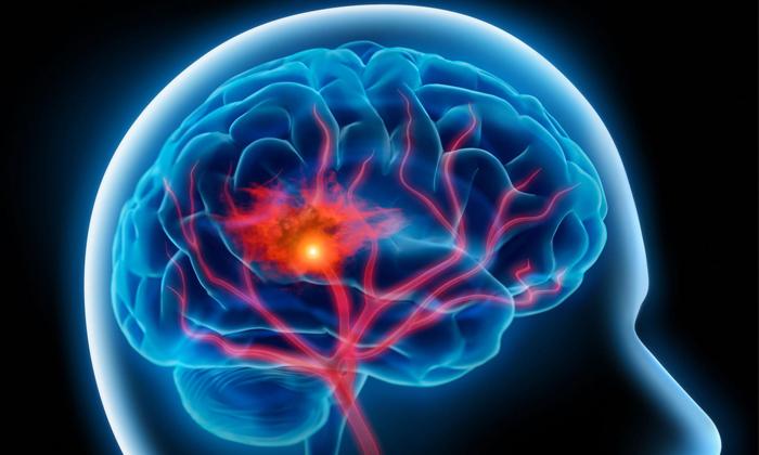 Виды тестов на болезнь Альцгеймера и их описание