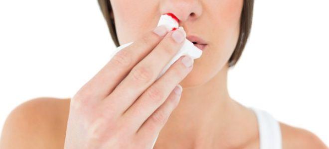Причины головной боли с кровотечением из носа